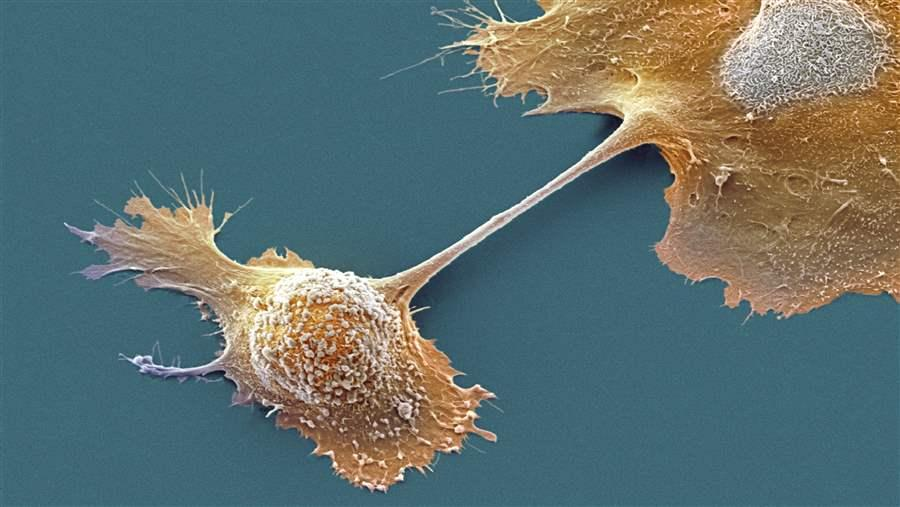 Pancreatic cancer cells.