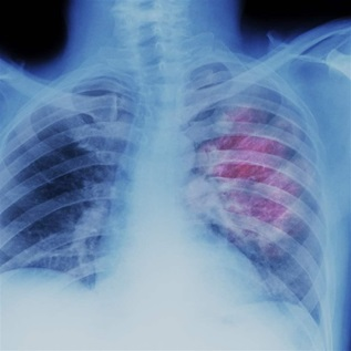 X-ray of lung showing chest cancer